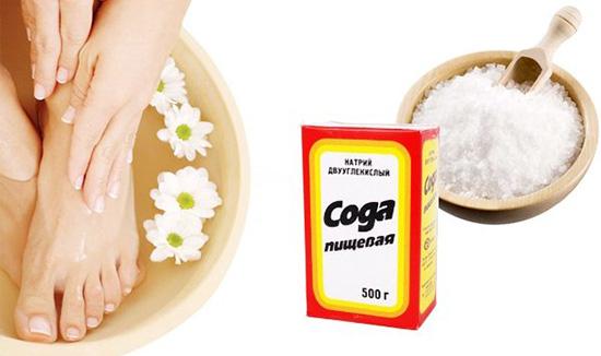 Грибок на ногах чем лечить содой