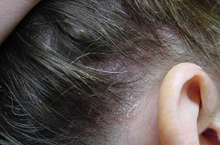Лучшее средство от псориаза на голове отзывы