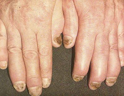 Артропатический псориаз. Симптомы и лечение. Народные средства