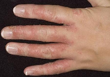 Болезни кожи рук