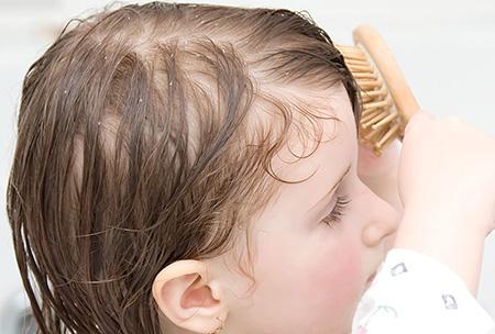Себорея кожи головы у детей лечение