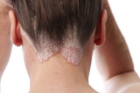 Сухая себорея кожи головы может стать огромной проблемой с эстетической стороны. Поврежденные участки кожи выглядят неприятно для окружающих и провоцируют появление комплексов у больного.