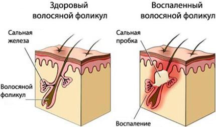Визуально кажется, что сальные железы вырабатывают недостаточное количество сала. На самом деле его консистенция становится слишком густой, поэтому оно не может в достаточном количестве выходить наружу, железы забиваются.