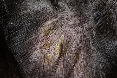 При сухой себорее страдает не только кожа головы, но и волосы: они становятся тусклыми, безжизненными, происходит активное их выпадение