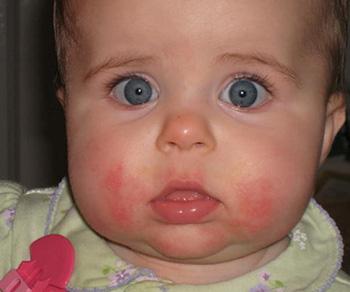 Кожные высыпания у маленьких детей — довольно частое явление