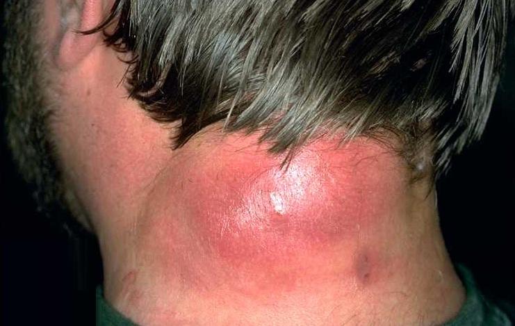 Лечение воспаления шеи в домашних условиях