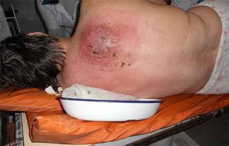 карбункул фото лечение