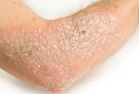 psoriasis-1.jpg