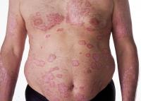 psoriasis-9.jpg