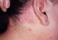 psoriasis-4.jpg