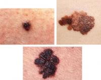 melanoma-2.jpg