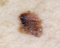 melanoma-3.jpg