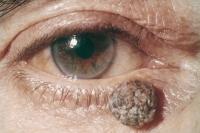 melanoma-5.jpg