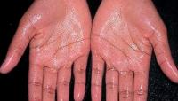 hyperhidrosis-5.jpg