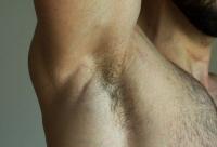 hyperhidrosis-16.jpg