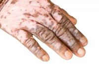 vitiligo-3.jpeg
