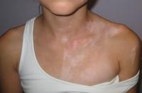 vitiligo-9.jpg