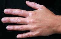 vitiligo-11.jpg