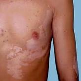 vitiligo-13.jpg