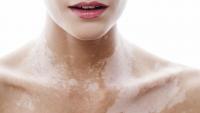 vitiligo-14.jpg