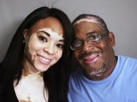 vitiligo-1.jpg