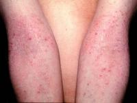 atopic dermatitis-1.jpg