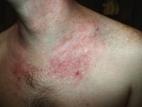atopic dermatitis-6.jpg