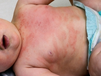 atopic dermatitis-5.jpg