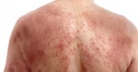 atopic dermatitis-4.jpg
