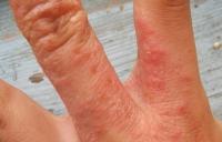 atopic dermatitis-8.jpg