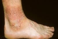atopic dermatitis-13.jpg
