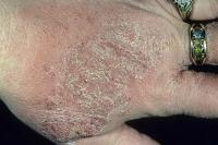 atopic dermatitis-9.jpg